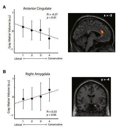 Anterior Cingulate and Right Amygdala