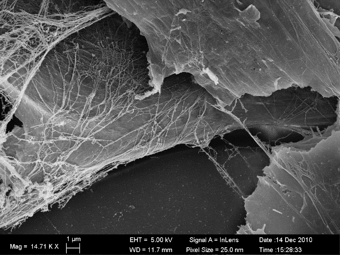 Scanning electron micrograph of cultured fibroblasts that illustrates how cells assemble and interact with fibrillar components of the surrounding ECM.