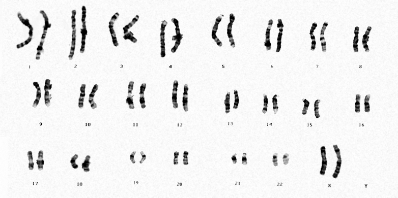 how many sex chromosomes in a human somatic cell in Abbotsford