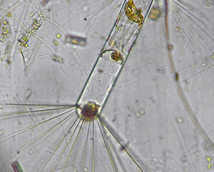 Phytoplankton from the Southern Ocean.