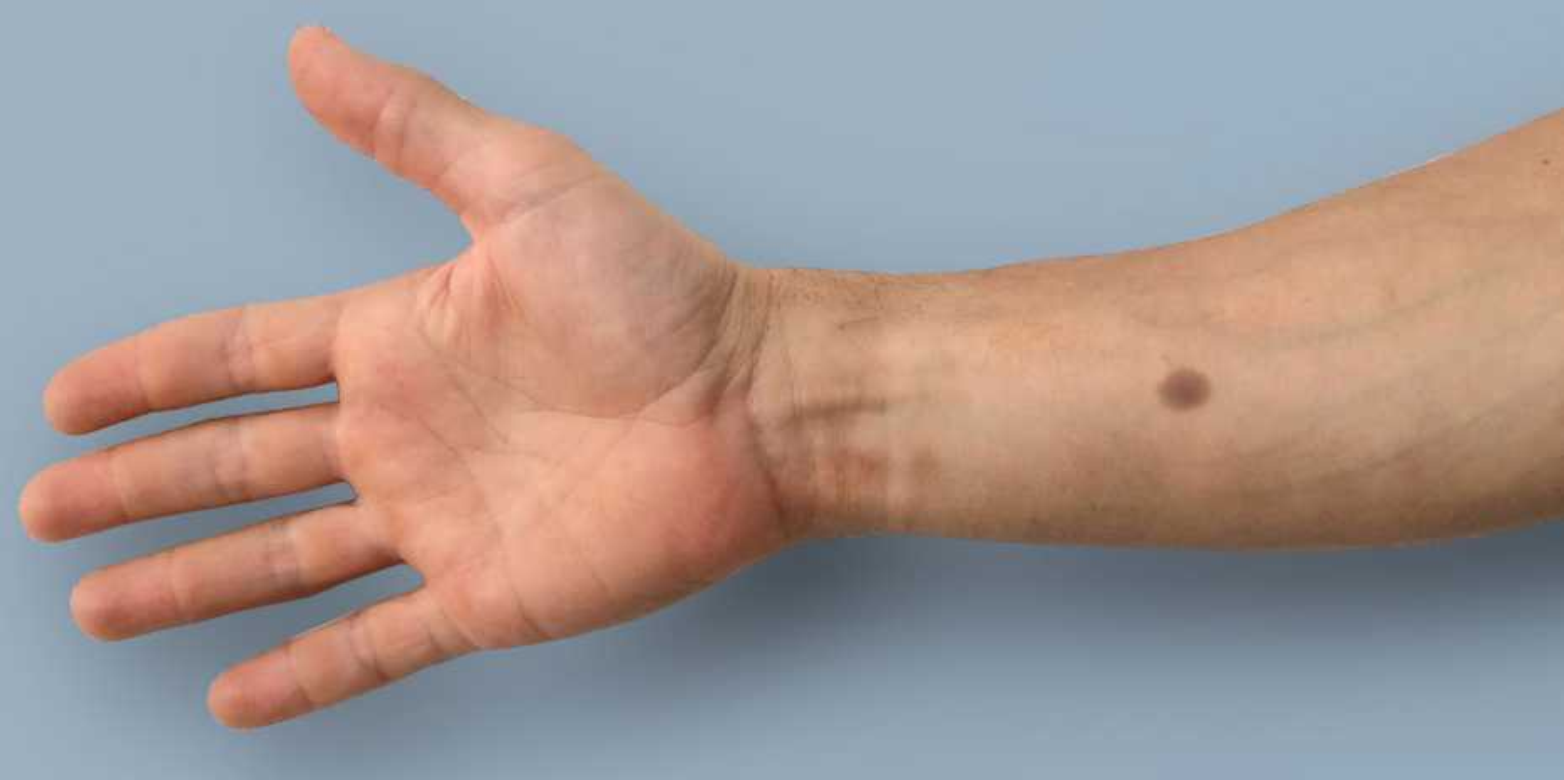 an artificial mole as an early warning sign eth zurich