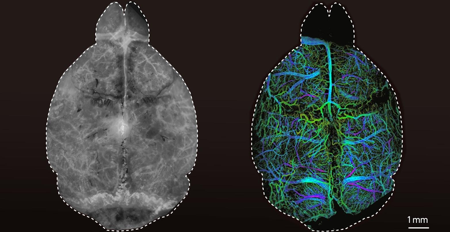 Image Brain